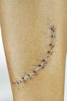 Failure To Properly Treat Surgical Wounds