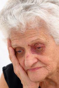 abused-elderly-woman-201x300