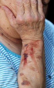 elder-abuse-in-nursing-homes-186x300