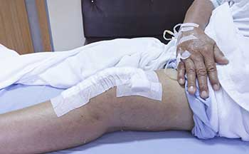 Wound Vac as Bedsore Treatment