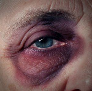 High Caregiver Stress can be a factor in Elder Abuse