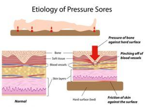 pressure-sores-in-nursing-homes