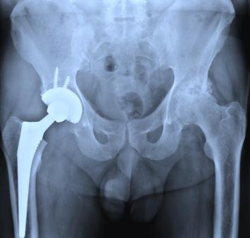 depuy hip x-ray