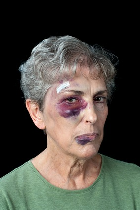 Problems in Elder Abuse