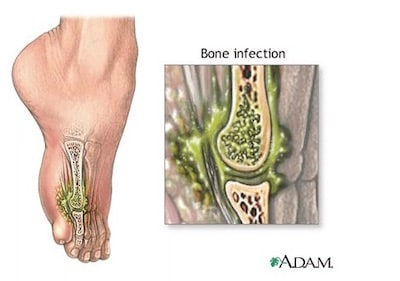 Bone Infection
