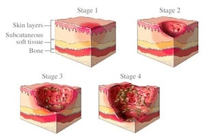 Stages Of Bed Sores