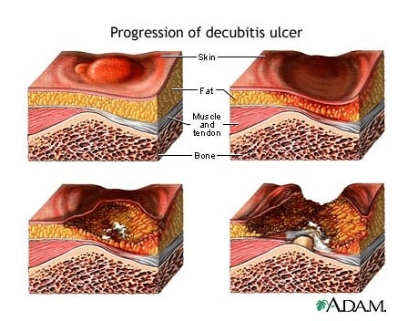 What are the characteristics of each stage of pressure ulcer